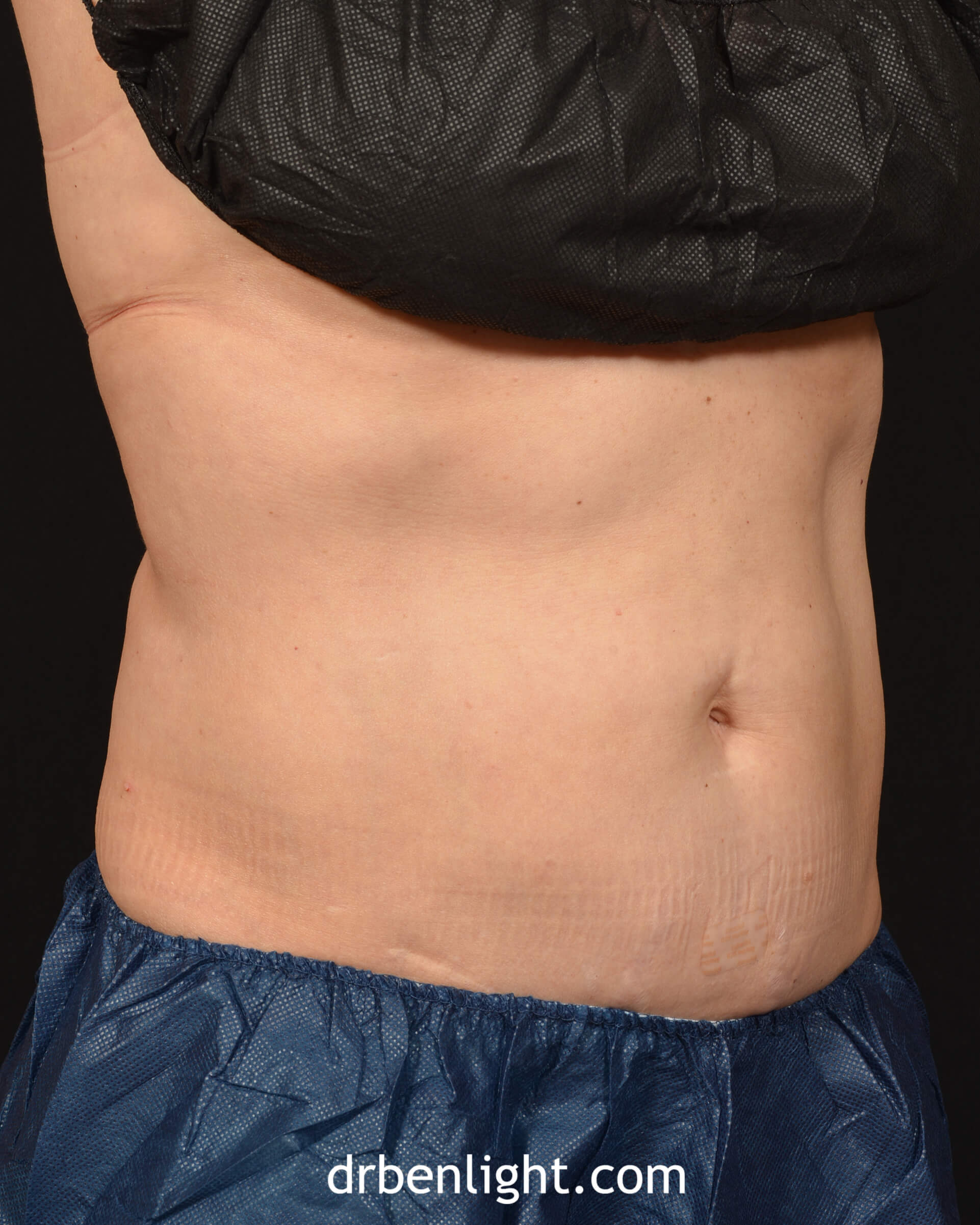 Female patient after CoolSculpting