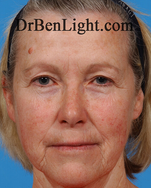 Female patient before Botox, dermal fillers and Ultherapy treatment