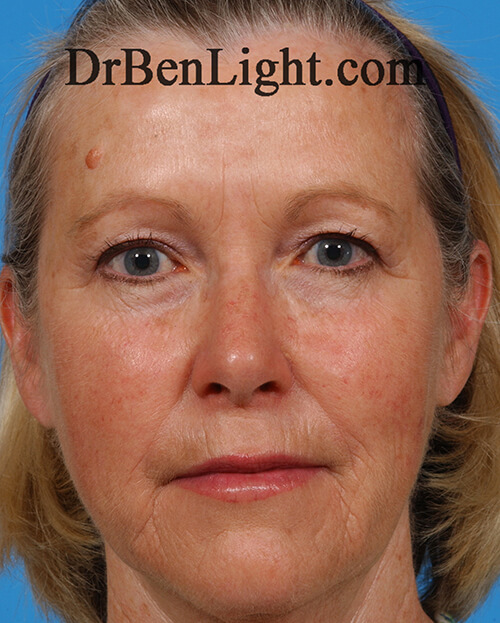 Female patient after Botox, dermal fillers and Ultherapy treatment