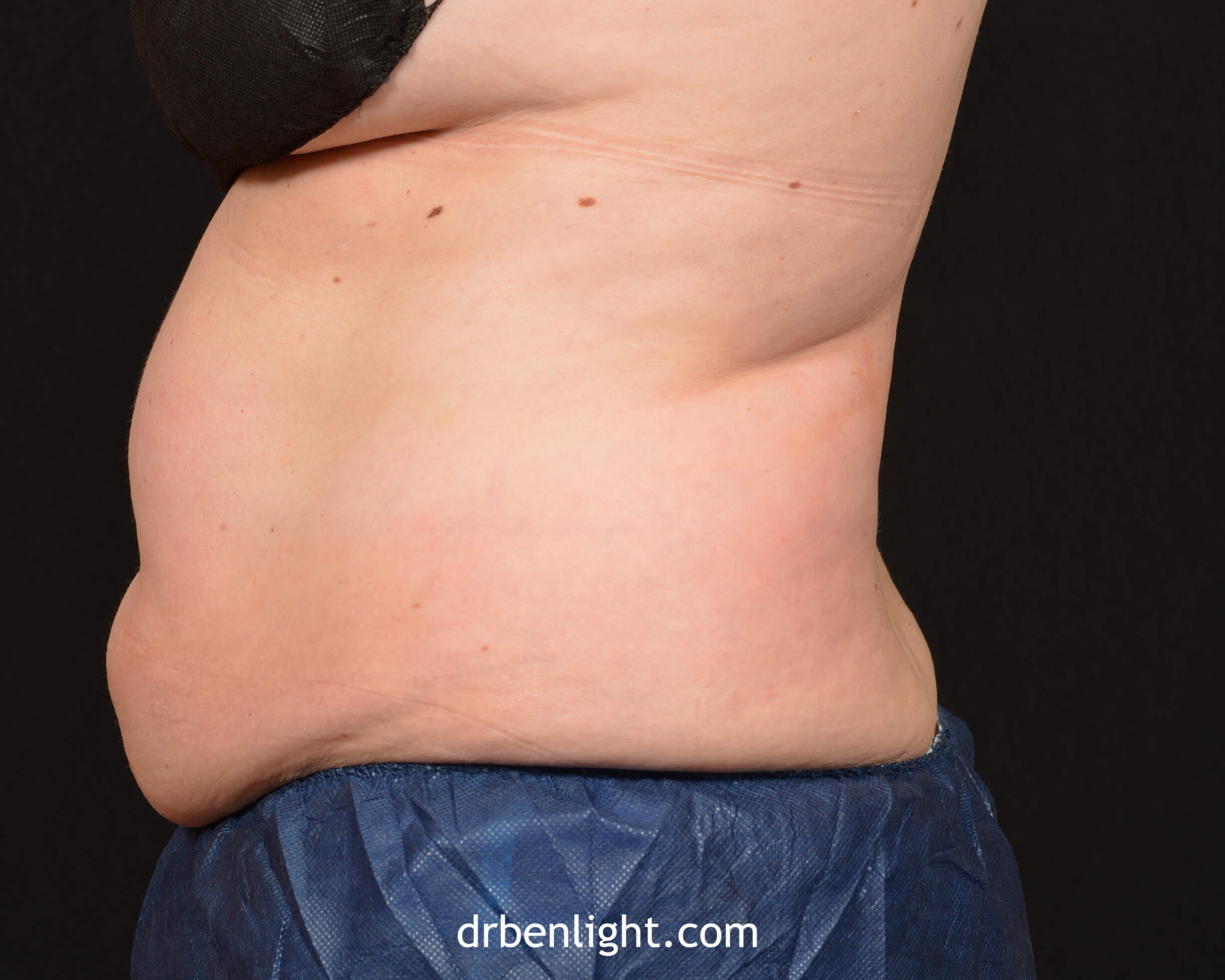 Female patient before CoolSculpting
