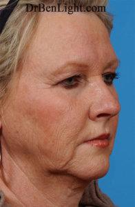 Female patient before facelift