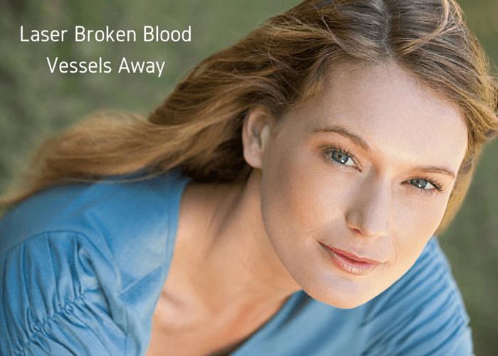 Laser Broken Blood Vessels Away